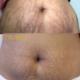 Ennen ja jälkeen — TightSculpting, raskausarpien hoito