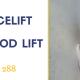 Mini facelift eli hollywood lift Helsinki
