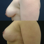 Rintojen kohotus ja 250cc anatomiset implantit