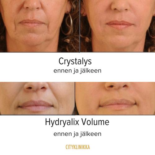 Crystalys ja Hydryalix ennen ja jälkeen