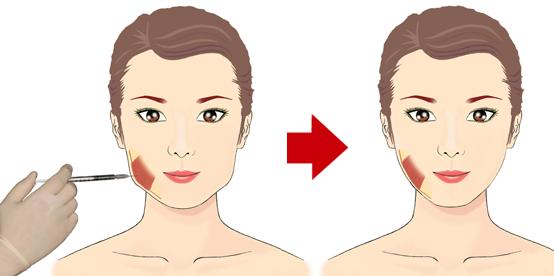 Kasvojen kaventaminen botoxilla