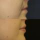 Ennen ja jälkeen — huuli-implantti