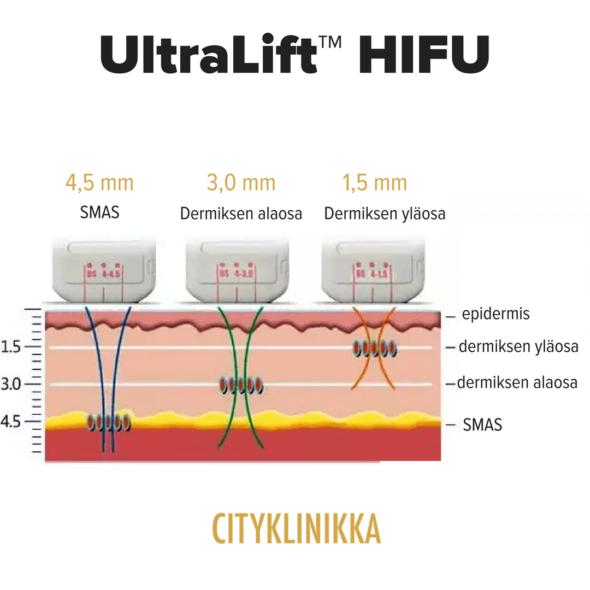 HIFU UltraLift™