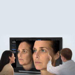VISIA kuvaa ihon pintaa syvemmältä