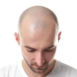 Hiustensiirtoleikkaus