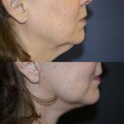 kasvojen-kohotus-leikkaus-ennen-jalkeen
