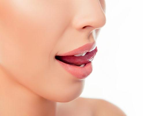 permalip huuli-implantti