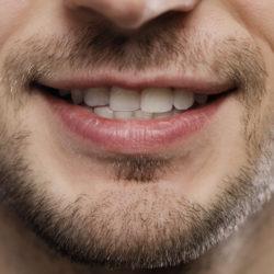 Hampaiden narskuttelu hoidetaan botuliinilla