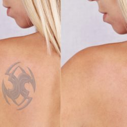 Tattoo Removal With Laser