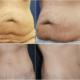 abdominoplastia-ennen-jalkeen-verkkosivu-39v-nainen