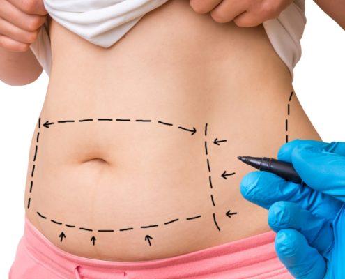 abdominoplastia plastiikkakirurgi Riikka Veltheim
