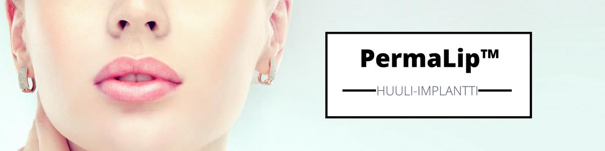 permalip-huuli-implantti