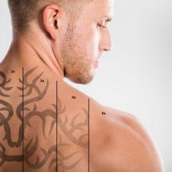 Tatuoinnin laserpoisto