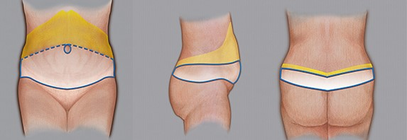 sirkumferentti abdominoplastia