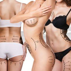 TightSculpting poistaa rasvaa ja kiinteyttää