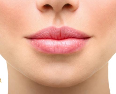 PermaLip huuli-implantti kokemuksia