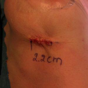 Motiva rintaimplantit short scar