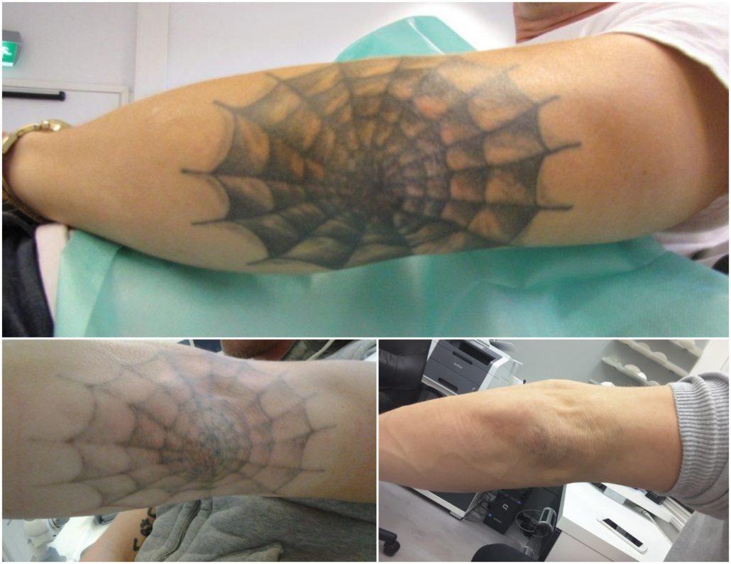 Tatuoinnin Poisto Hinta
