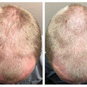 hairlase-ennen-ja-jalkeen-hiustenlahdosta-eroon