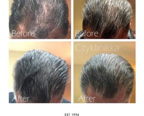 hairlase-ennen-ja-jalkeen-eroon-kaljuuntumisesta-eroon-hiustenlahdosta