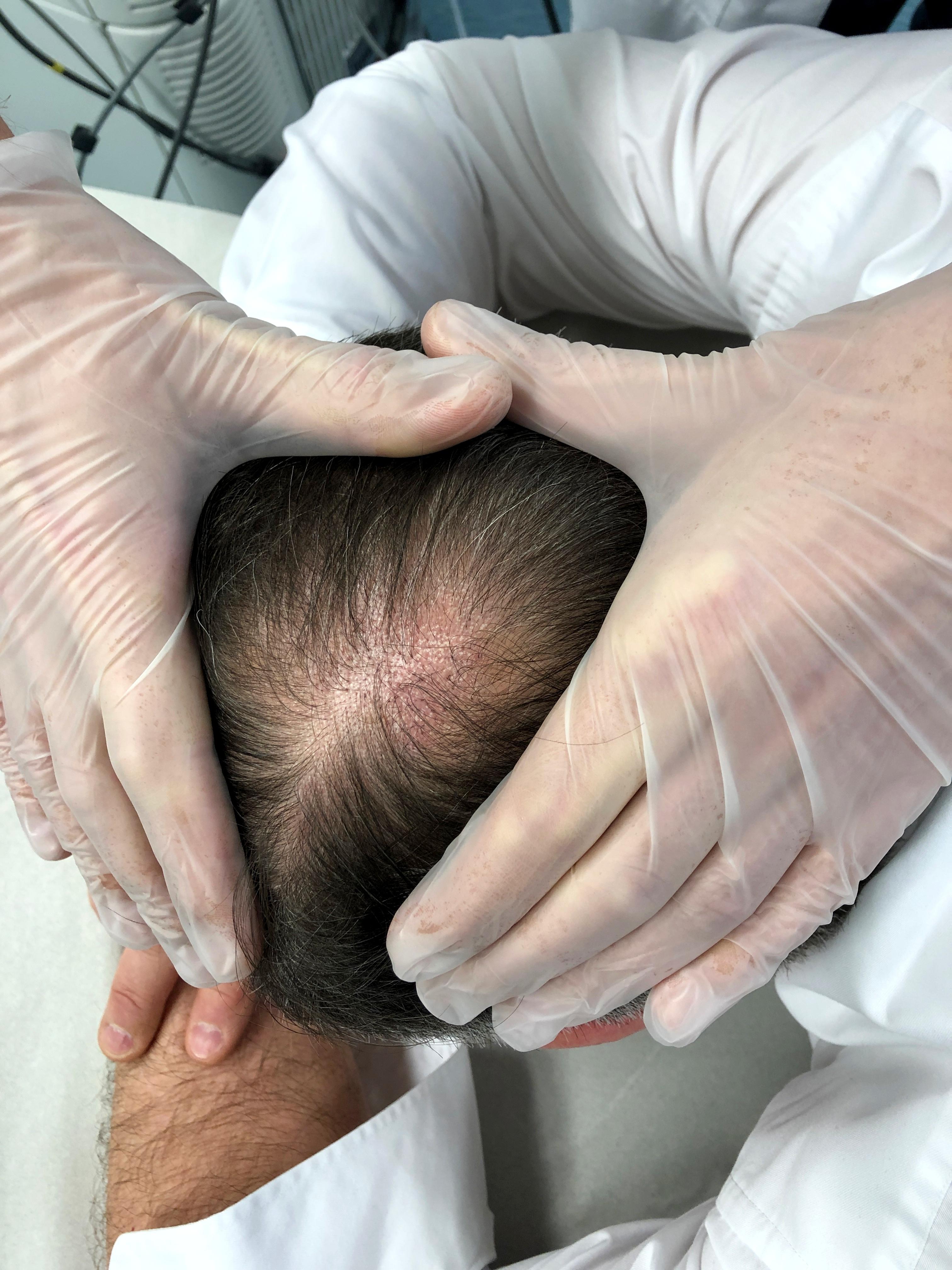 hairlase-miesten-kaljuuntuminen-hoidon-jalkeen