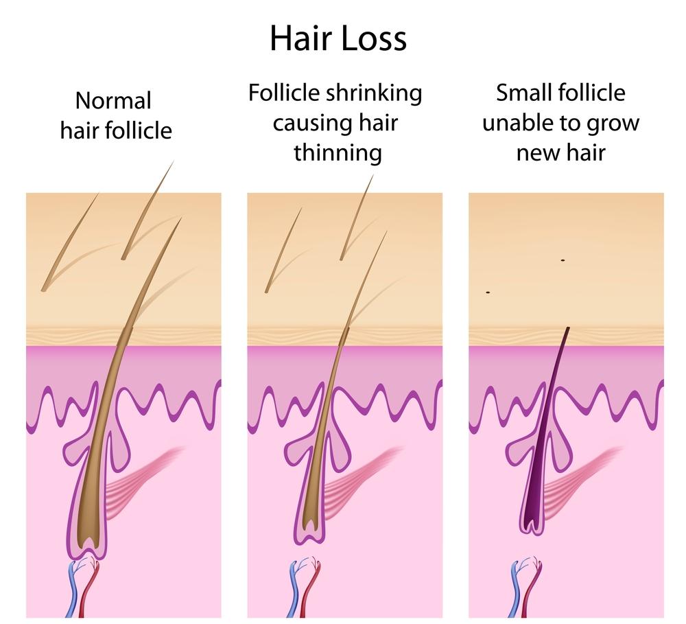 hiustenlahto-kaljuuntuminen-miestenhiustenlahto