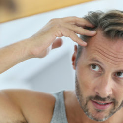 HairLase - eroon hiustenlähdöstä