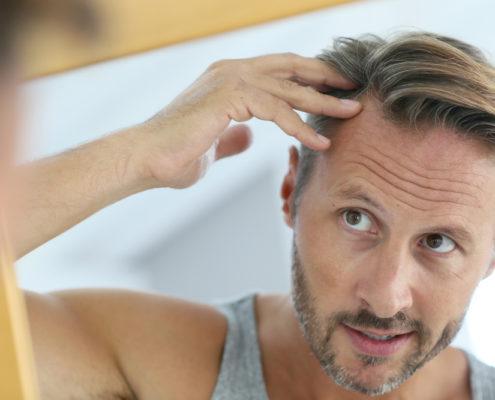 miesten-hiustenlahto-kaljuuntuminen-naisten-kaljuuntuminen