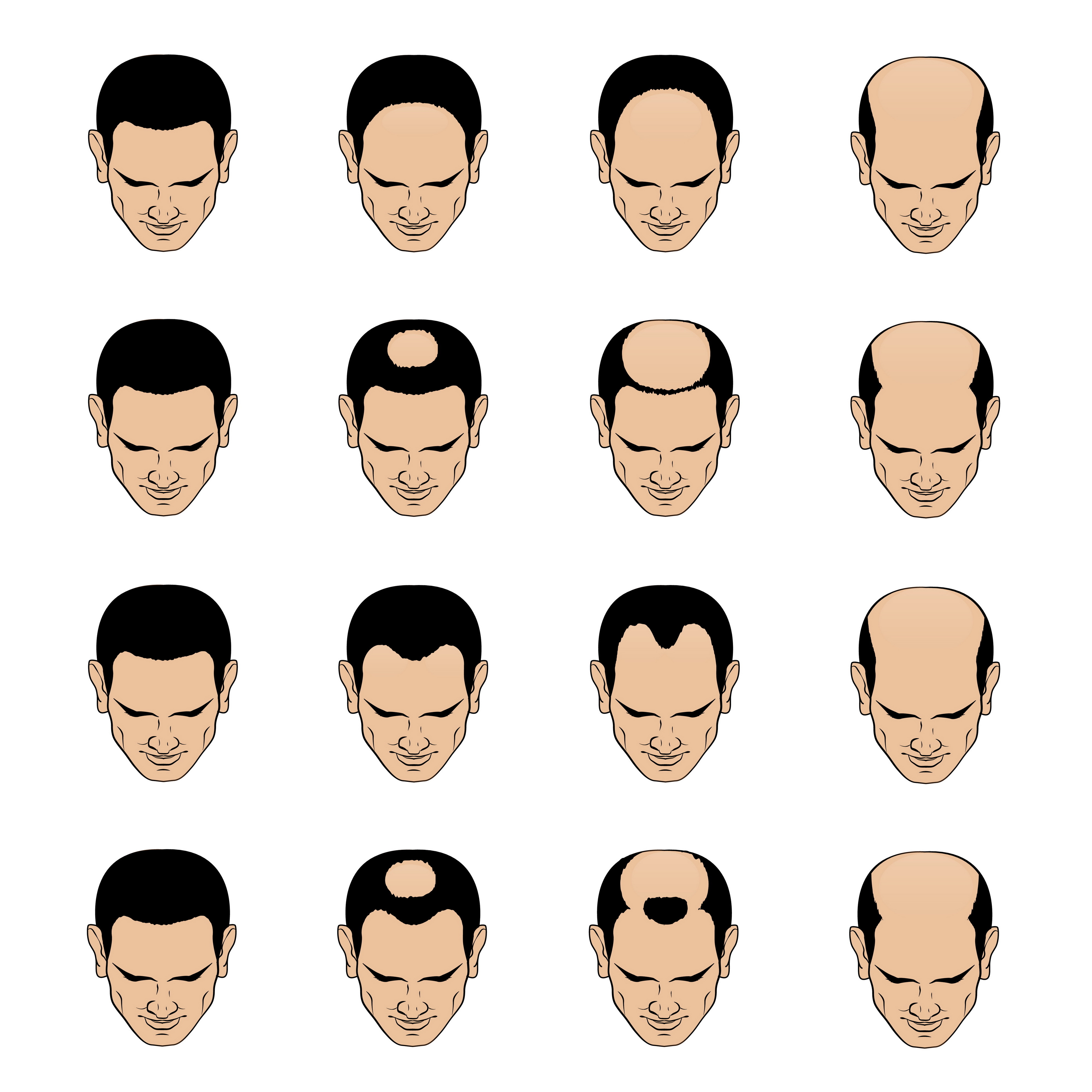 miesten-kaljuuntumisen-muodot-miesten-hiustenlahto